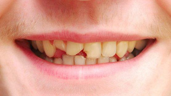 Có nên trám răng sứt mẻ không? Có hiệu quả không?