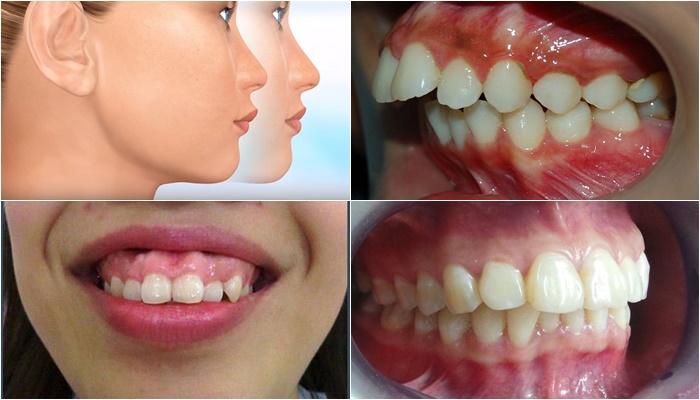 Phẫu thuật hàm hô - Công nghệ 3D an toàn, không đau 1