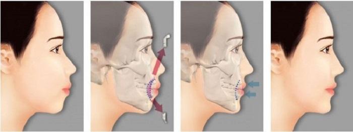 Phẫu thuật hàm hô - Công nghệ 3D an toàn, không đau 2