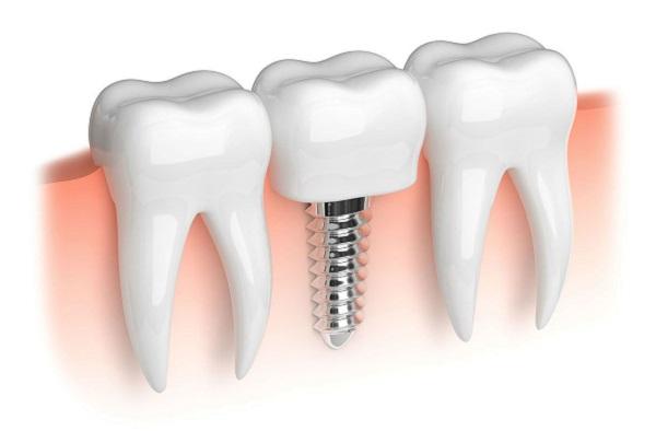 Kết quả hình ảnh cho Sử dụng một chuyển động tròn hoặc trên tất cả răng implant