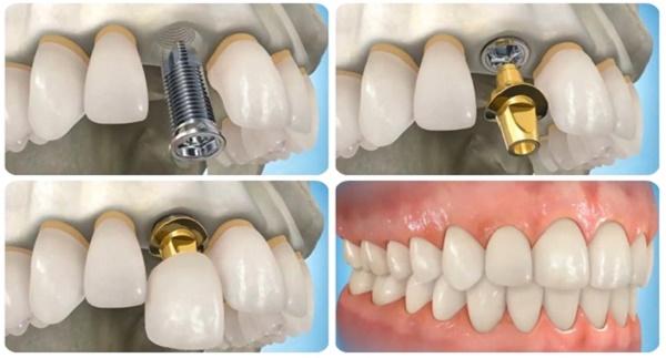 Thời gian trồng răng Implant bao lâu thì hoàn thành -1