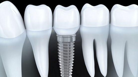 Làm răng mới an toàn và thẩm mỹ cao bằng cấy ghép răng implant