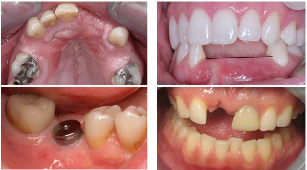 Trồng răng implant - Sở hữu răng mới bền đẹp như răng thật -1
