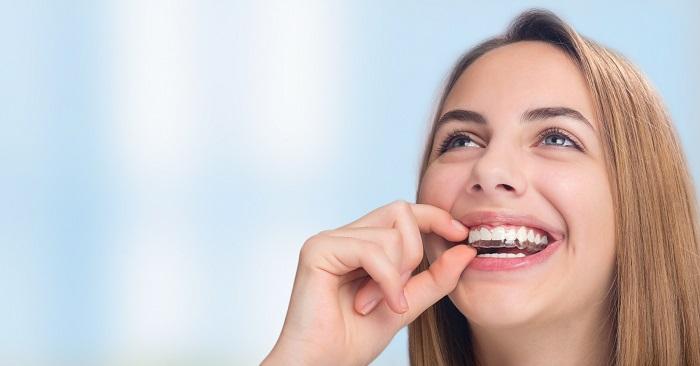 niềng răng invisalign - Nha Khoa Kim