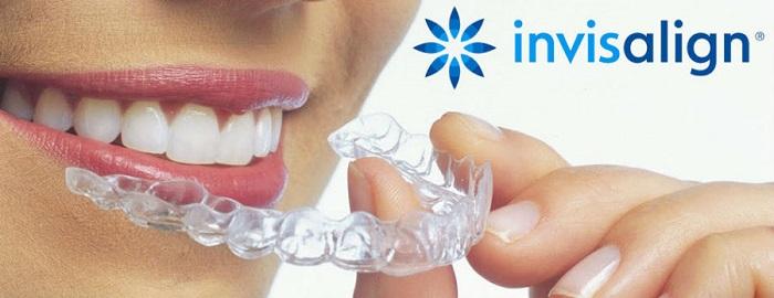 Niềng răng không mắc cài trong suốt Invisalign - Nha Khoa KIM