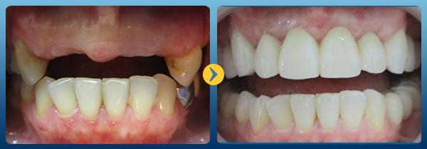 Địa chỉ trồng răng Implant nào đẹp và uy tín nhất -6