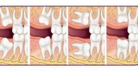 Nhổ răng khôn mọc lệch có nên hay không?