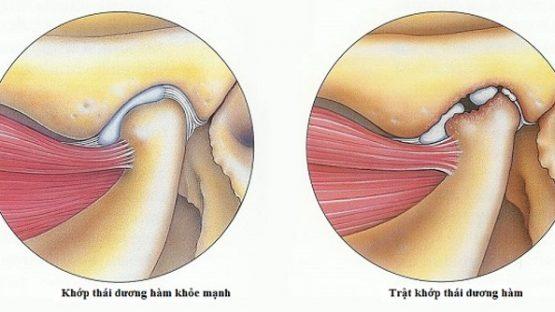 Chữa viêm khớp thái dương hàm an toàn tại Nha Khoa KIM