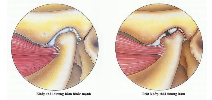 Chữa viêm khớp thái dương hàm an toàn tại Nha Khoa KIM 1