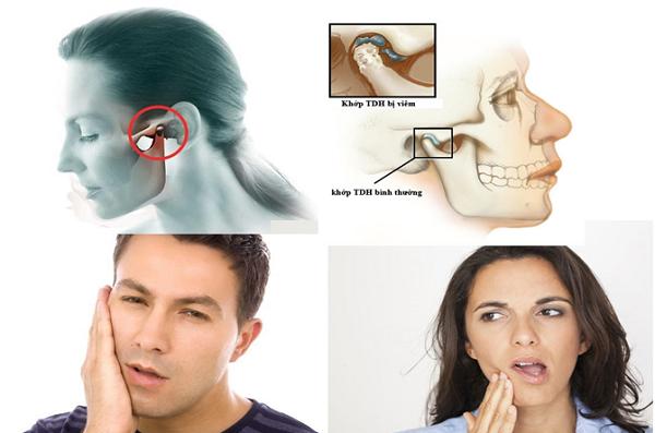 Chữa viêm khớp thái dương hàm an toàn