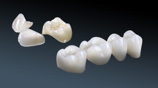 Răng sứ hợp kim – kim loại có tốt và bền đẹp lâu dài không?