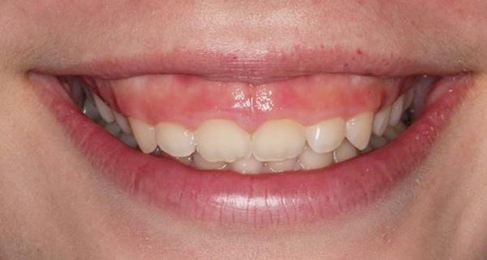 Phương pháp làm răng dài nào được áp dụng phổ biến hiện nay? 1