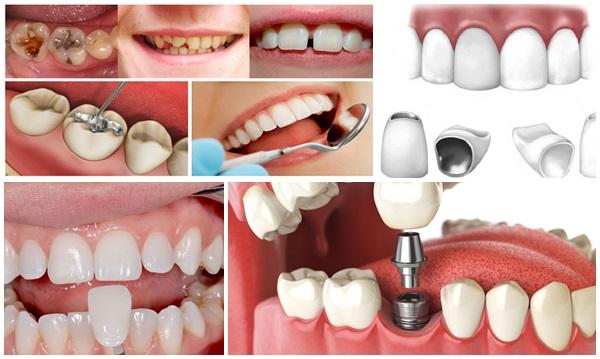 làm răng đều - 2