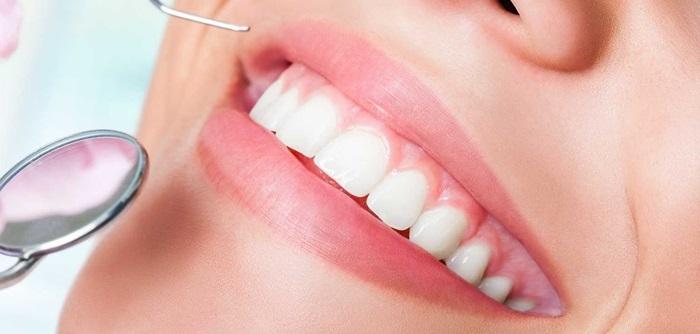 Niềng răng lộn xộn - Công nghệ 3D hiệu quả, thẩm mỹ cao 2
