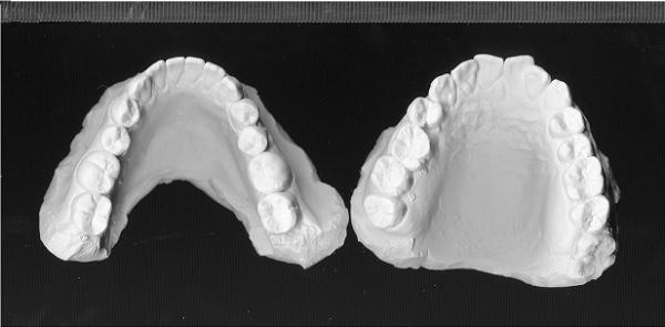 răng giả vàng - 6