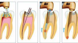 Giá điều trị tủy răng hiện nay bao nhiêu tiền?
