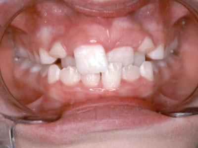 Niềng răng lệch lạc – Loại nào nhanh và hiệu quả nhất?