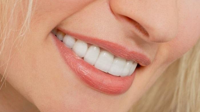 Điều trị cười hở lợi - Giải pháp cho nụ cười đẹp hoàn hảo 2