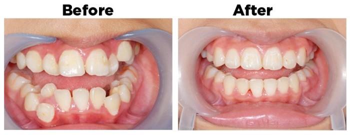Niềng răng mắc cài sứ - Giải pháp tối ưu cho hàm hô, móm, vẩu, lệch lạc 4
