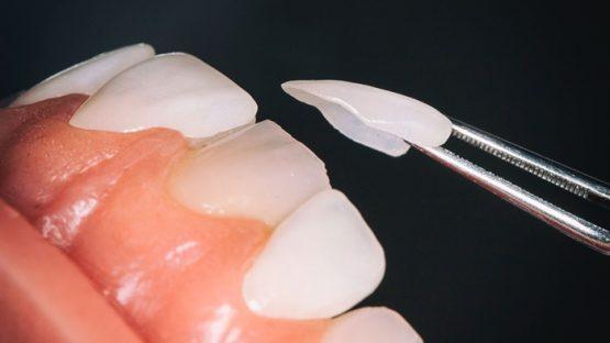 Mặt dán sứ Veneer – đảm bảo tính thẩm mỹ cao, hạn chế mài cùi răng