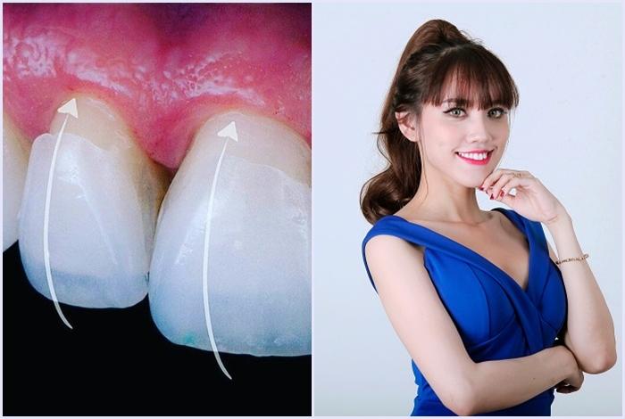 Mặt dán sứ Veneer - đảm bảo tính thẩm mỹ cao, hạn chế mài cùi răng 7