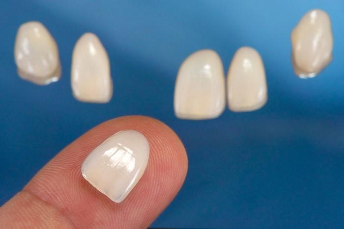 Làm răng sứ Laminate có tốt không? 3