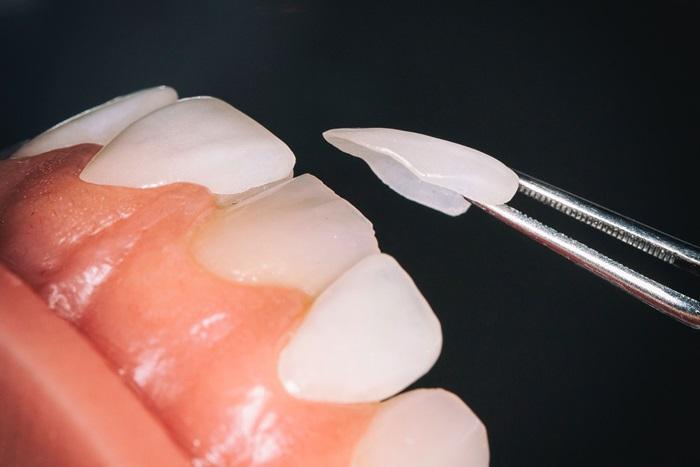 Đắp răng giả bằng kỹ thuật nha khoa hiện đại, thẩm mỹ cao 1