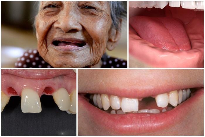 Trồng răng Implant Fast 3D - Phương pháp phục hình răng tân tiến từ Mỹ 3