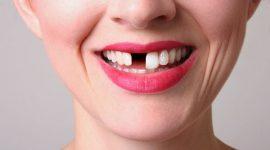 Giá làm răng giả hiện nay là bao nhiêu?