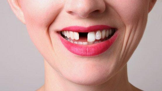 Giá làm răng giả bao nhiêu tiền? | Thông tin chi tiết