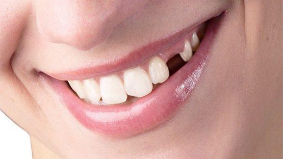 Trường hợp nào nên cắm răng giả implant?