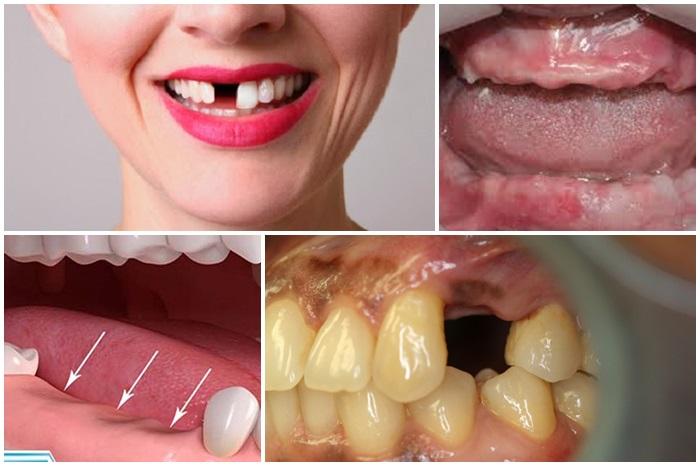 Trồng răng giả vĩnh viễn -1