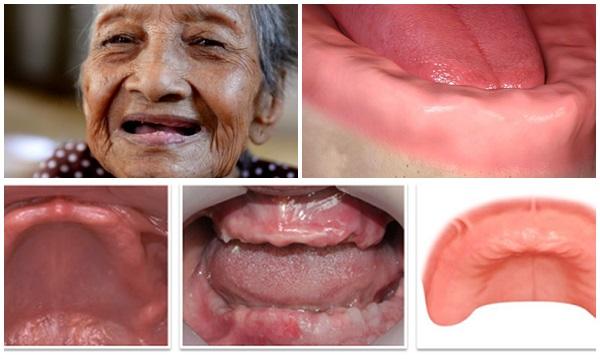 Trồng răng implant nguyên hàm