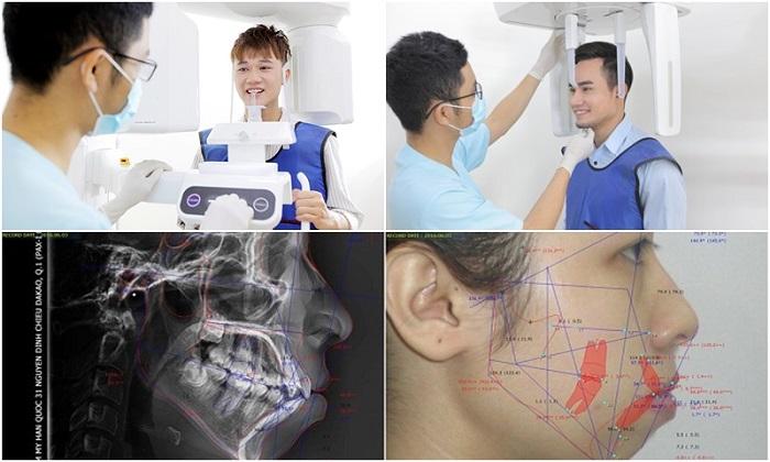 Nhổ răng cấm áp dụng trong trường hợp nào - Thông tin bạn cần biết 6