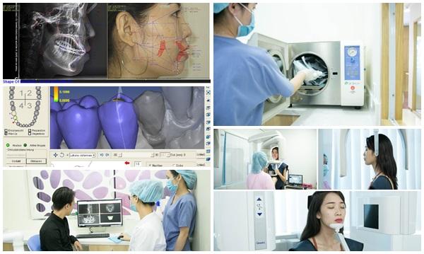 Tư vấn răng hàm mặt 4