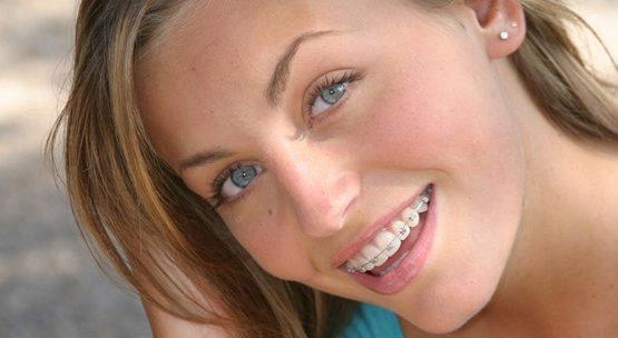 Niềng răng hô vẩu an toàn hiệu quả cao tại Nha Khoa KIM