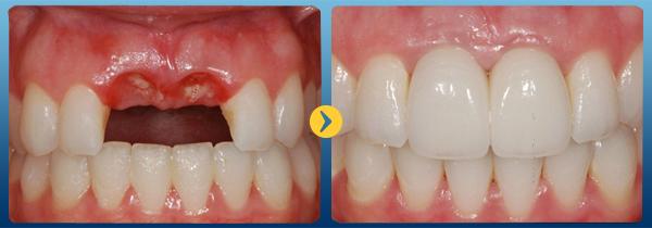 Địa chỉ trồng răng Implant nào đẹp và uy tín nhất -5