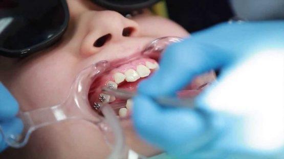 Nha khoa niềng răng nào uy tín và điều trị tốt nhất hiện nay?