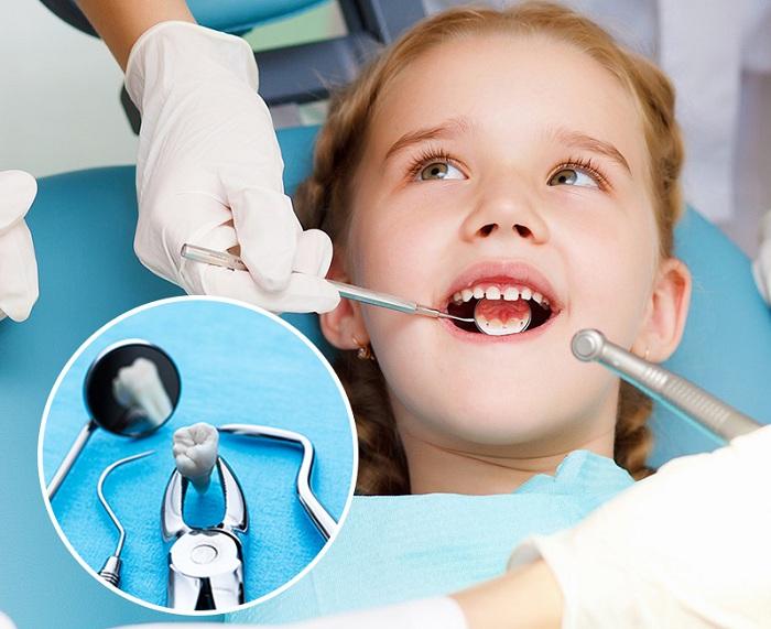Nhổ răng sâu cho trẻ - Những thông tin cơ bản cha mẹ nên biết 4