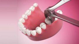 Có nên nhổ răng hàm số 7 không, có đau không?