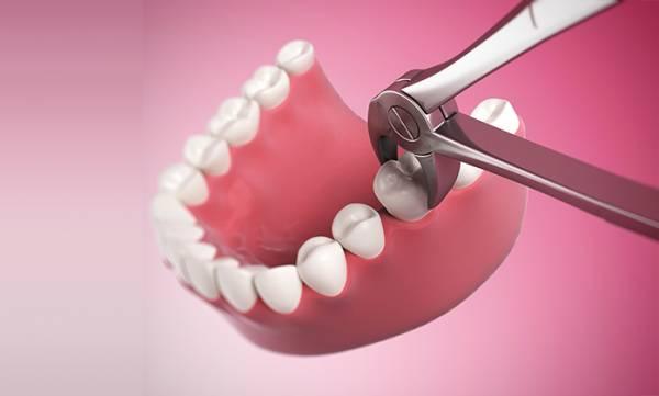 Nhổ răng hàm số 7 có ảnh hưởng đến sức khỏe không?