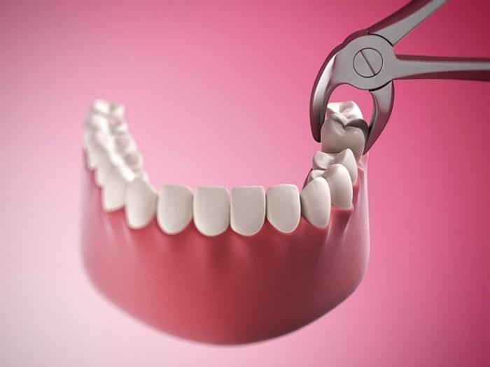 Nhổ răng cấm áp dụng trong trường hợp nào - Thông tin bạn cần biết 1