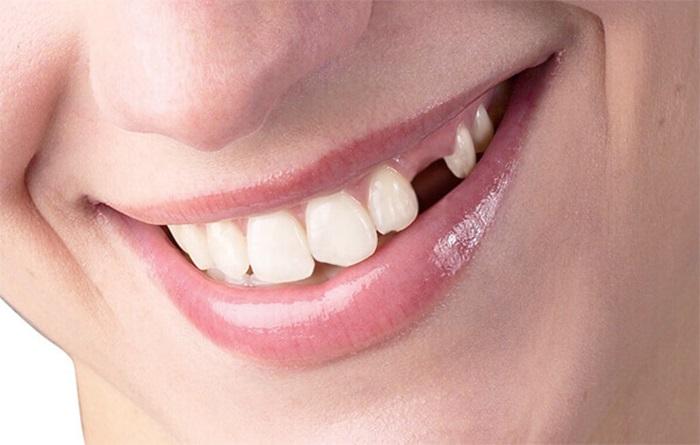 Nhổ răng cửa mọc lệch có được hay không? 1