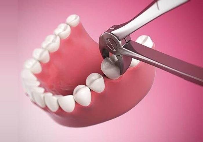 Nhổ răng hàm bằng kỹ thuật gây tê hiện đại không đau 1