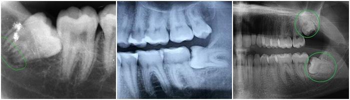 Có nên trồng răng số 8 sau khi đã nhổ răng rồi hay không? 2