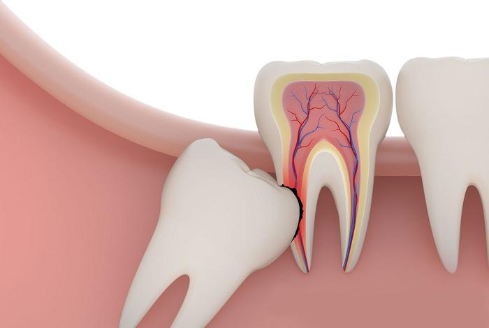 nhổ răng khôn đau không 2