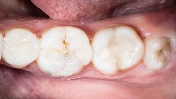 Nhổ răng khôn hàm trên ở đâu an toàn và uy tín nhất hiện nay? 2