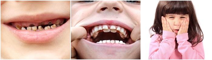 Nhổ răng sữa cho trẻ em - Kỹ thuật nhẹ nhàng và không gây đau đớn 1
