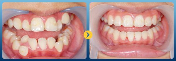 làm răng thẩm mỹ - 6