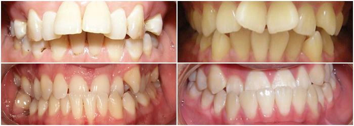 Chỉnh răng hô, móm, lệch lạc bằng phương pháp niềng răng thẩm mỹ 1